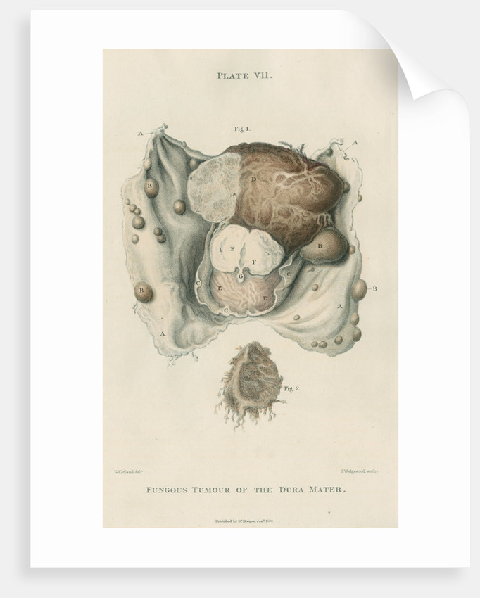'Fungous tumour of the dura mater' by J Wedgewood