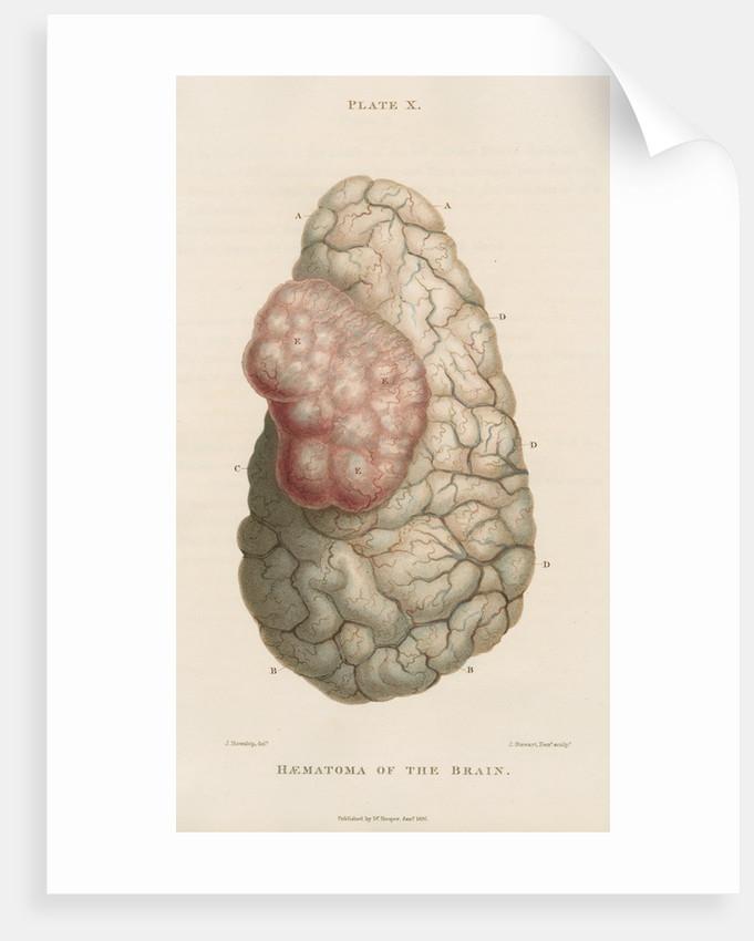 'Haematoma of the brain' by J Stewart senior