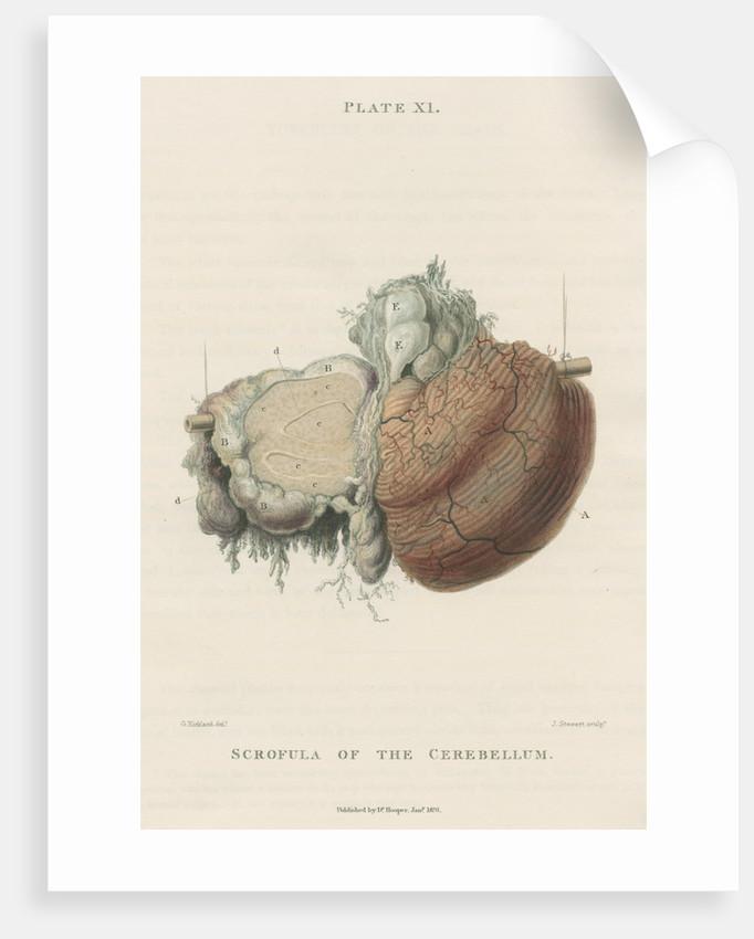 'Scrofula of the cerebellum' by J Stewart senior