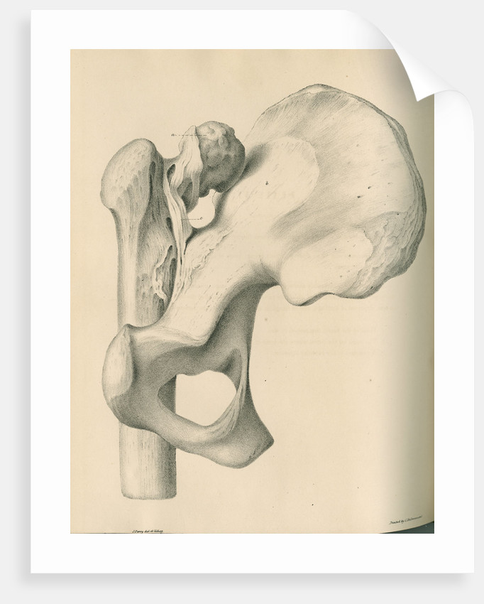 Posterior view of a left dislocated femur and hip bone by J Perry