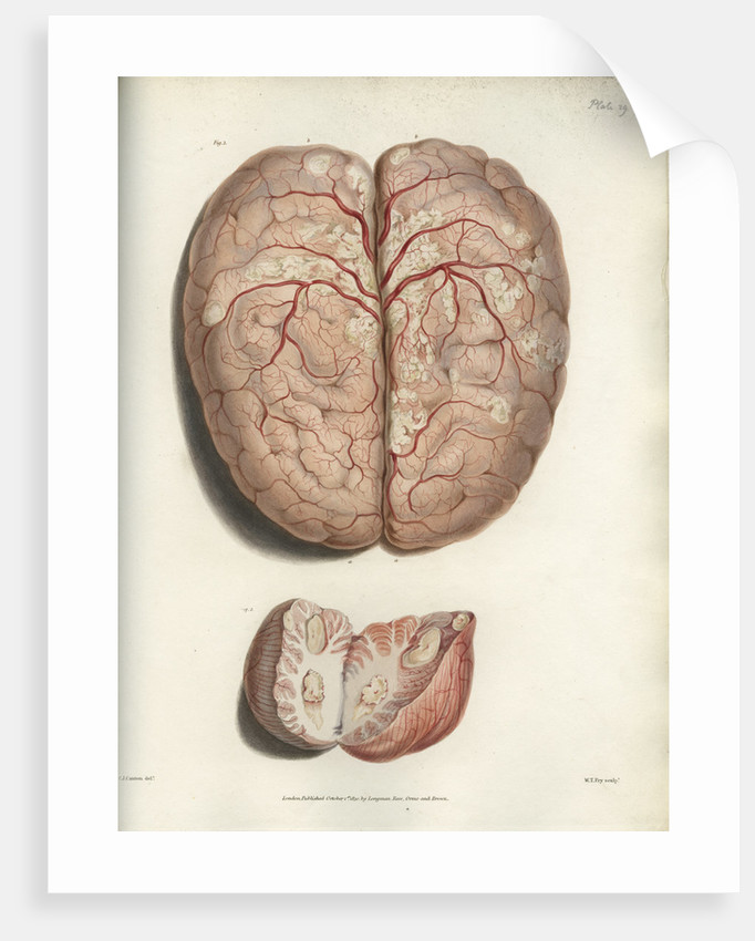 Scrofulous tubercles in the brain\' posters & prints by C J Canton