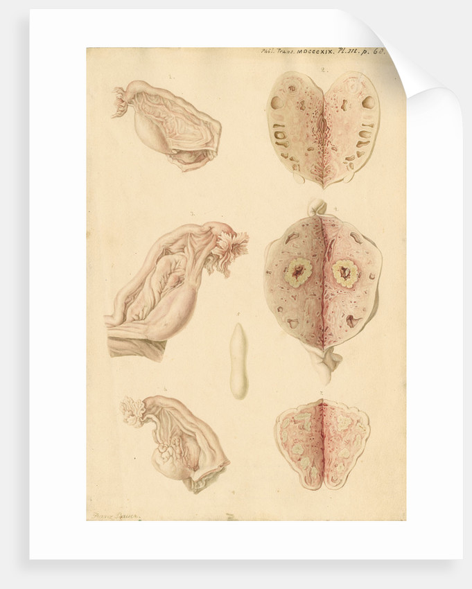 Human ovary and corpus luteum at different ages by Franz Andreas Bauer