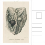 'Tumours of the dura mater' by J Wedgewood
