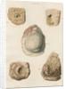 Abscess of the brain by J Stewart senior