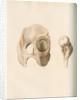 Hip and femur by G Hallmandel