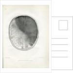 'Epilepsy' by Godefroy Engelmann