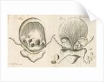 Human bladder and bladder stones by Elizabeth Blackwell