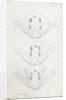 Posterior body parts of Diaspis bromellae [Pineapple scale], Diaspis boisduvalii [Biosduval scale] and Diaspis calyptroides [Cactus scale] by Robert Newstead