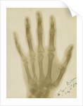 X-ray photograph of the hand of Arthur James Balfour by Alan Archibald Campbell Swinton