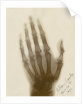 X-ray photograph of the hand of William Crookes by Alan Archibald Campbell Swinton