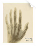 X-ray photograph of the hand of William George Armstrong by Alan Archibald Campbell Swinton
